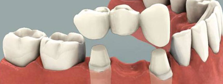 Dental Crowns and Dental Bridges