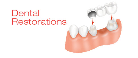 Dental Restorations